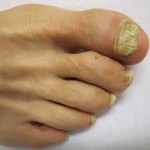 Foot with corns and calluses
