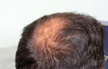 Atlanta GA Dermatologists that Treat Hair Loss